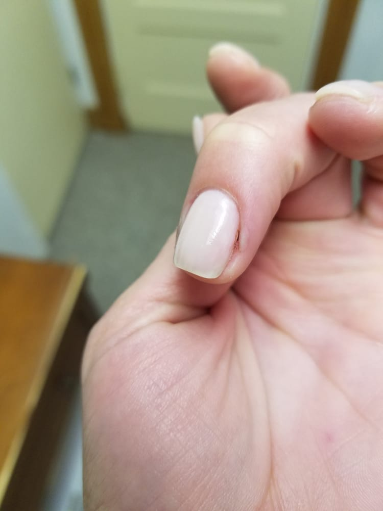 Infected finger after waiting 3 weeks to get my nails done. - Yelp