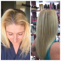 hair loss shampoo Pembroke Pines