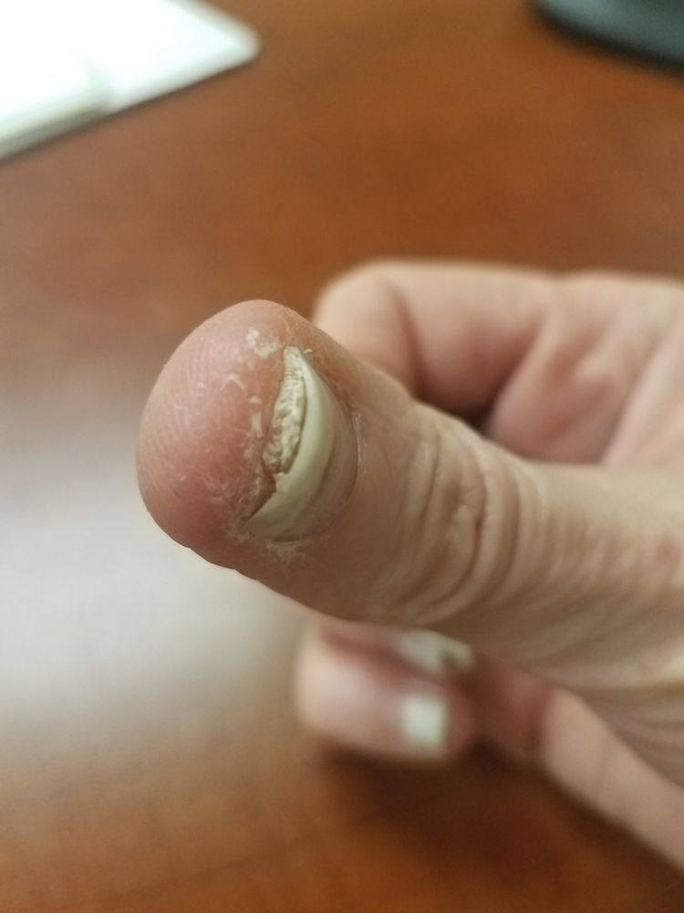 Natural Nails DESTROYED my fingernails. Diagnosed FUNGUS in ALL 10 ...
