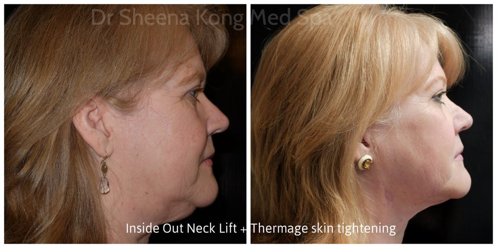 Inside Out Neck Lift combined with Thermage CPT skin tightening  - Yelp
