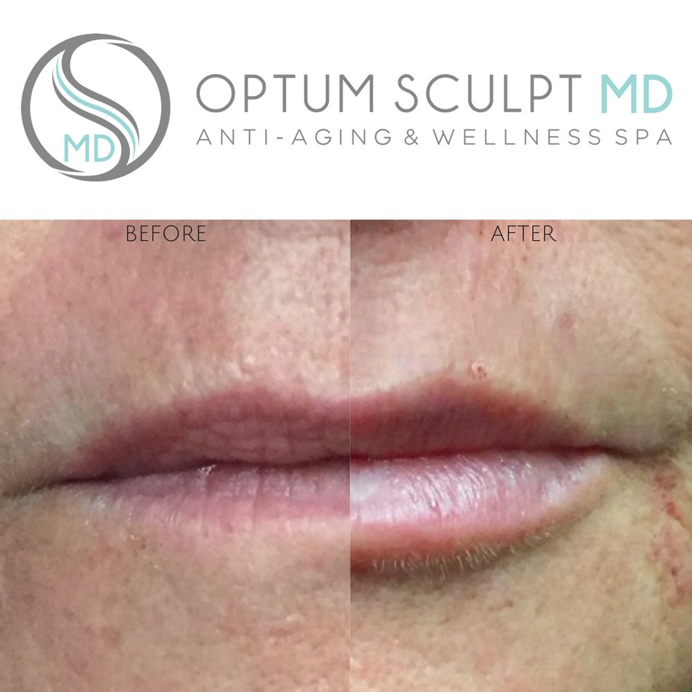 Filler for lips and smokers lines - Yelp