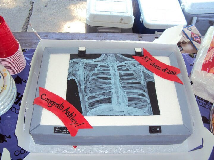 Pia colada chest xray cake by Andrea for my Radiology graduation