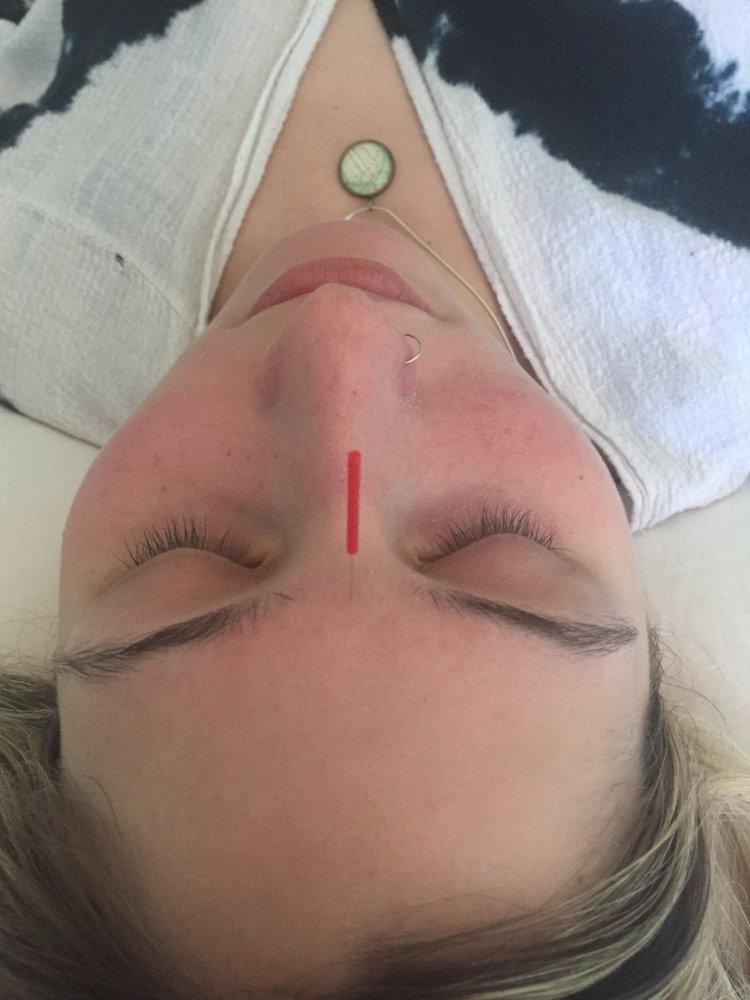 DC Acupuncture