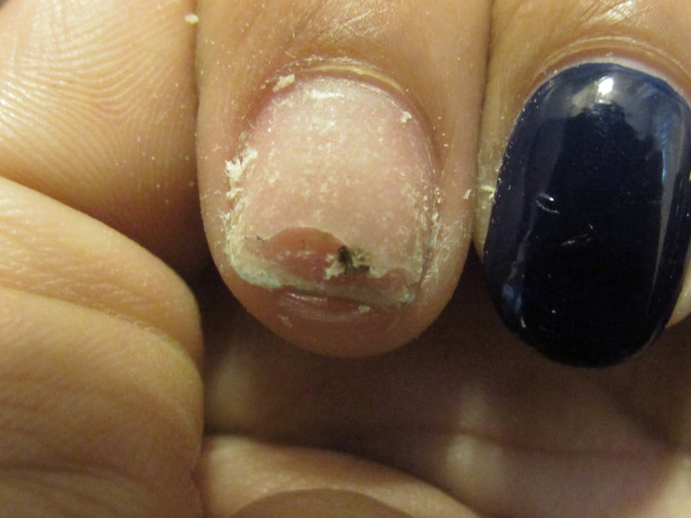 This is the gross thing I had growing in between my nail and the ...