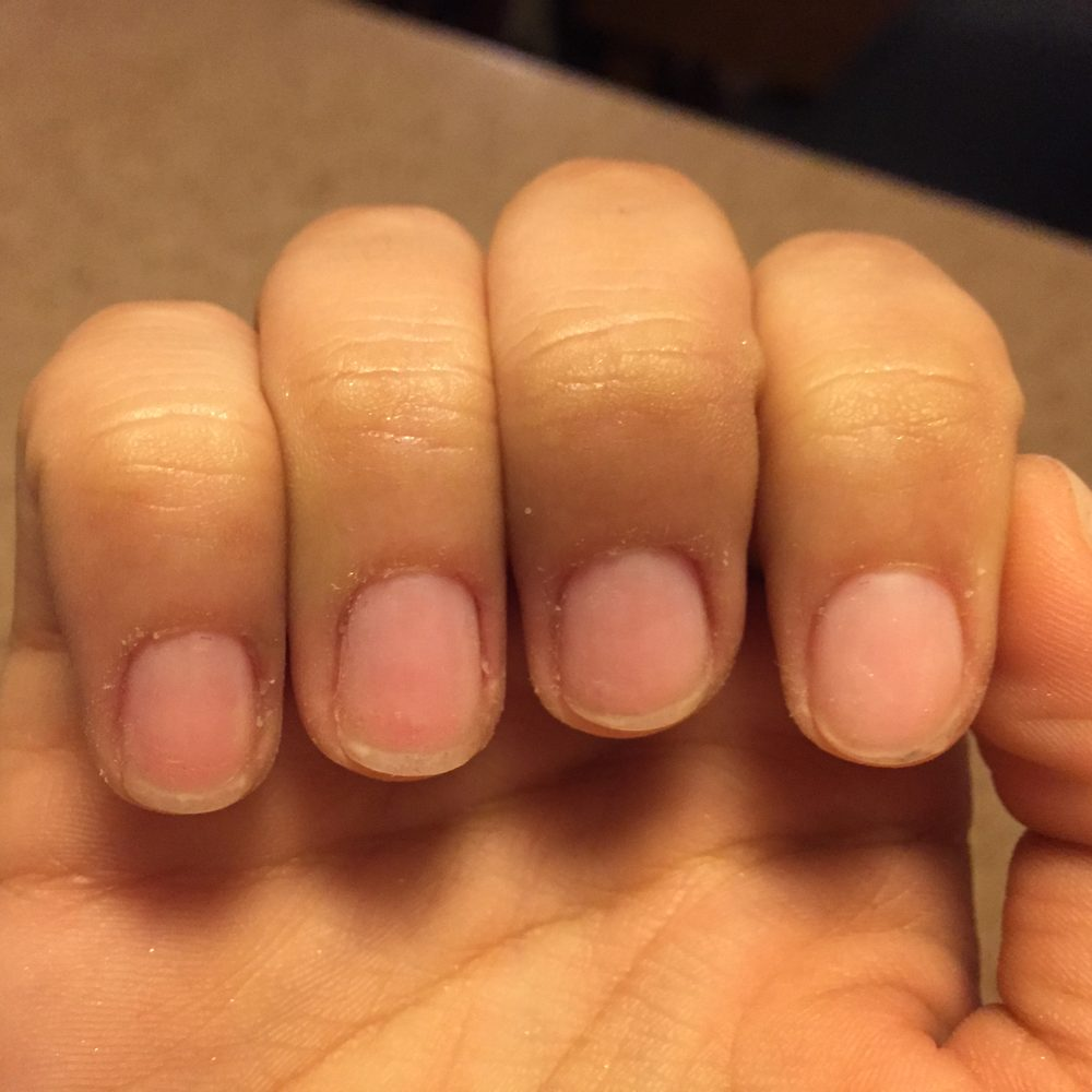 These are my nails when I LEFT Luv Nails. Completely destroyed. They ...