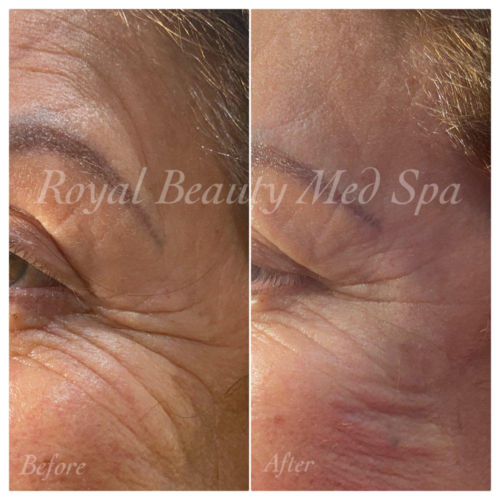 Royal Beauty Med Spa: 6100 Atlantic Blvd, Maywood, CA