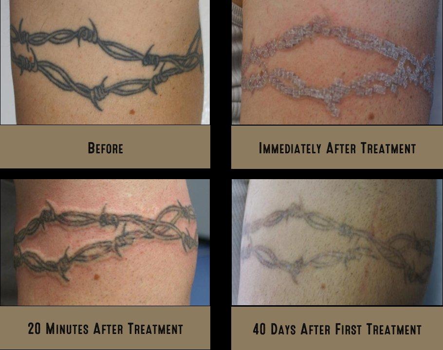 Free My Ink - Tattoo Removal - 4945 Lapalco Boulevard, Marrero, LA ...