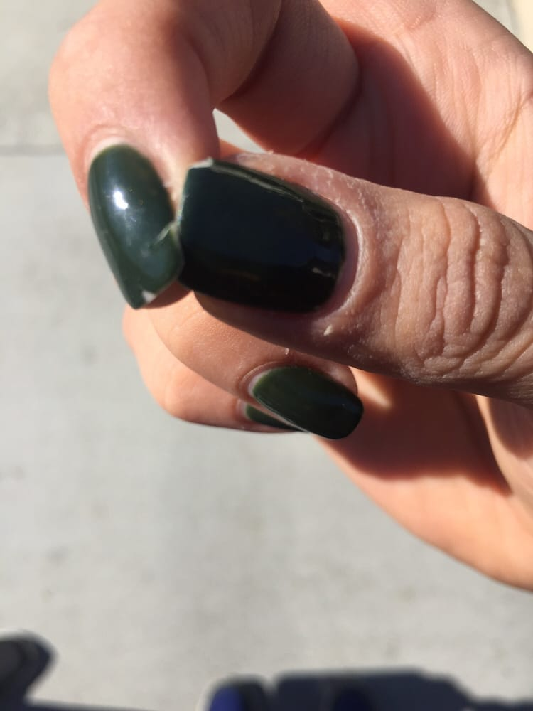 You can see the chipped gel and the cracked nail on my middle finger ...