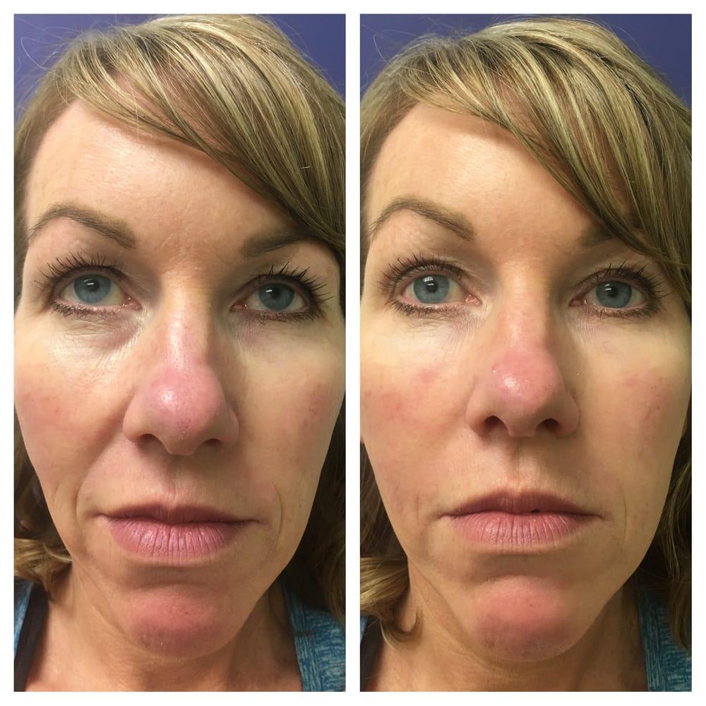 Restylane + Restylane Lyft combination under eyes, cheeks
