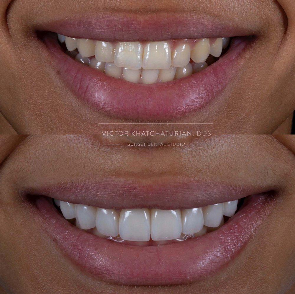 Victor Khatchaturian, DDS - Sunset Dental Studio