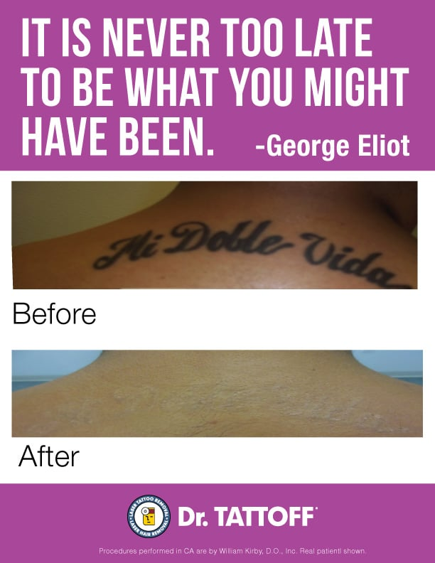 Before and after tattoo removal pics - Yelp