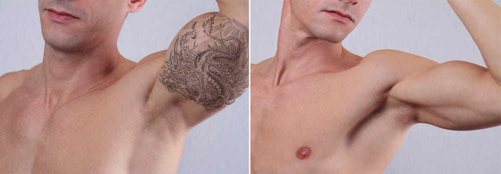 how much is tattoo removal - Yelp