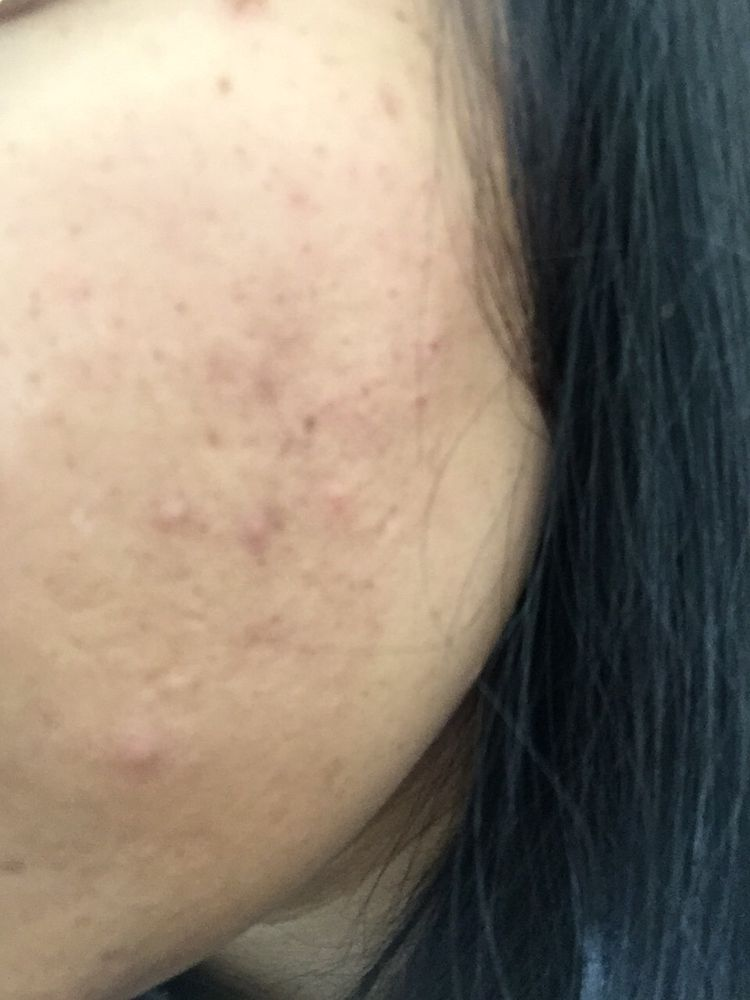 These are not pimples  This is what i got from threading