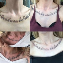 Sugar Land Laser Tattoo Removal - 16 Photos & 20 Reviews - Tattoo ...