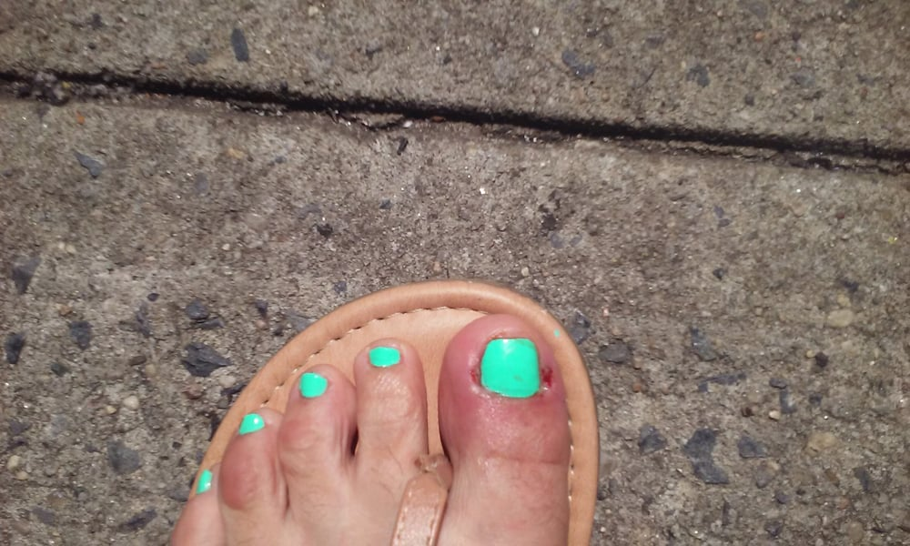 Infected! She made a huge hole on the side of my toe yesterday. This ...