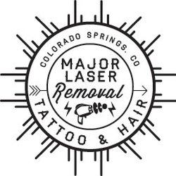 Major Laser Removal - Tattoo Removal - 2130 Vickers Dr, Colorado ...