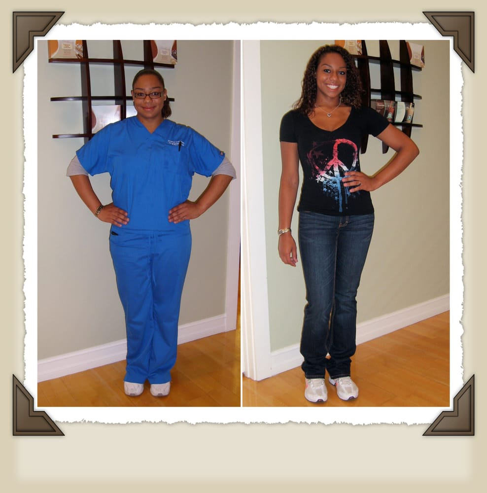 Real Patient Leigha Lost 62 Pounds Yelp