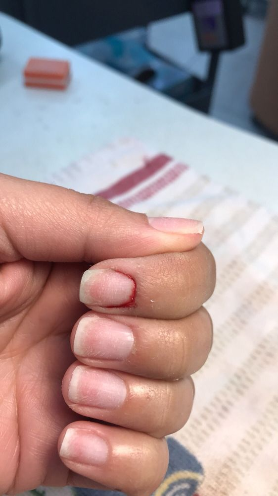 As she was cutting my cuticle she must have cut too deep cause it ...