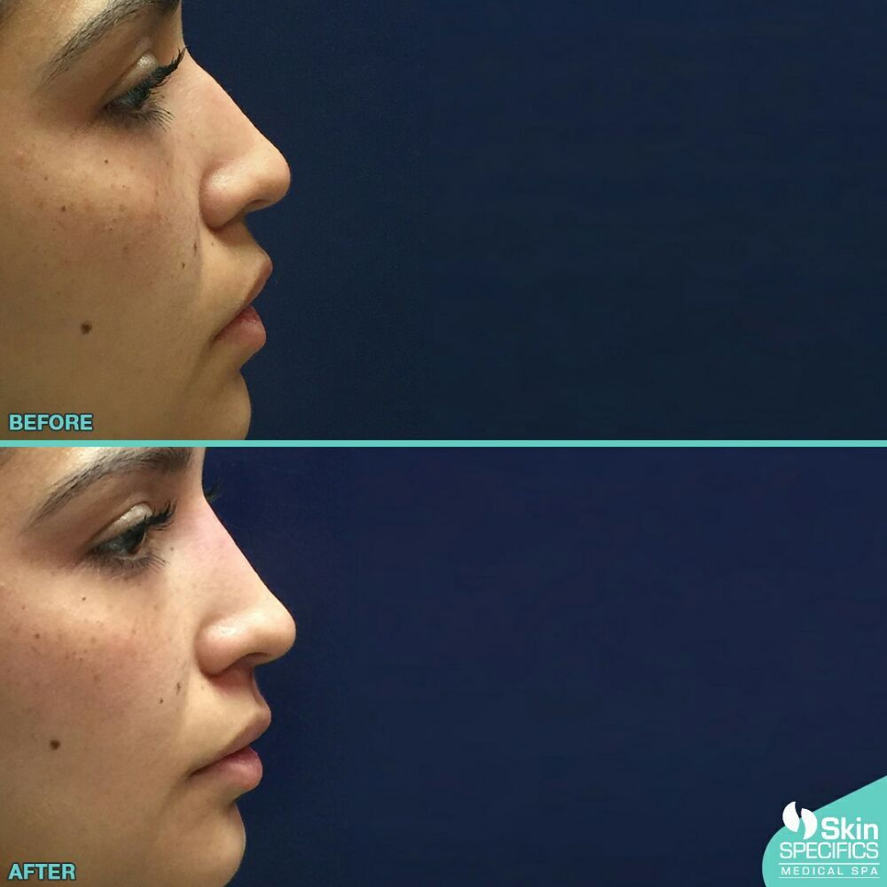 how to raise your nose bridge