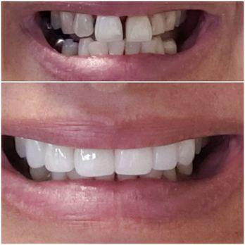 Excel Dental & Implant Center - 20 Photos & 78 Reviews
