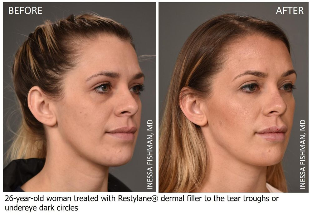 We specialize in aesthetic facial fillers, such as Restylane