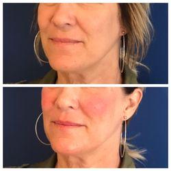 5 BEST Skin Care near Madison Park, Seattle, WA 98112 - Last