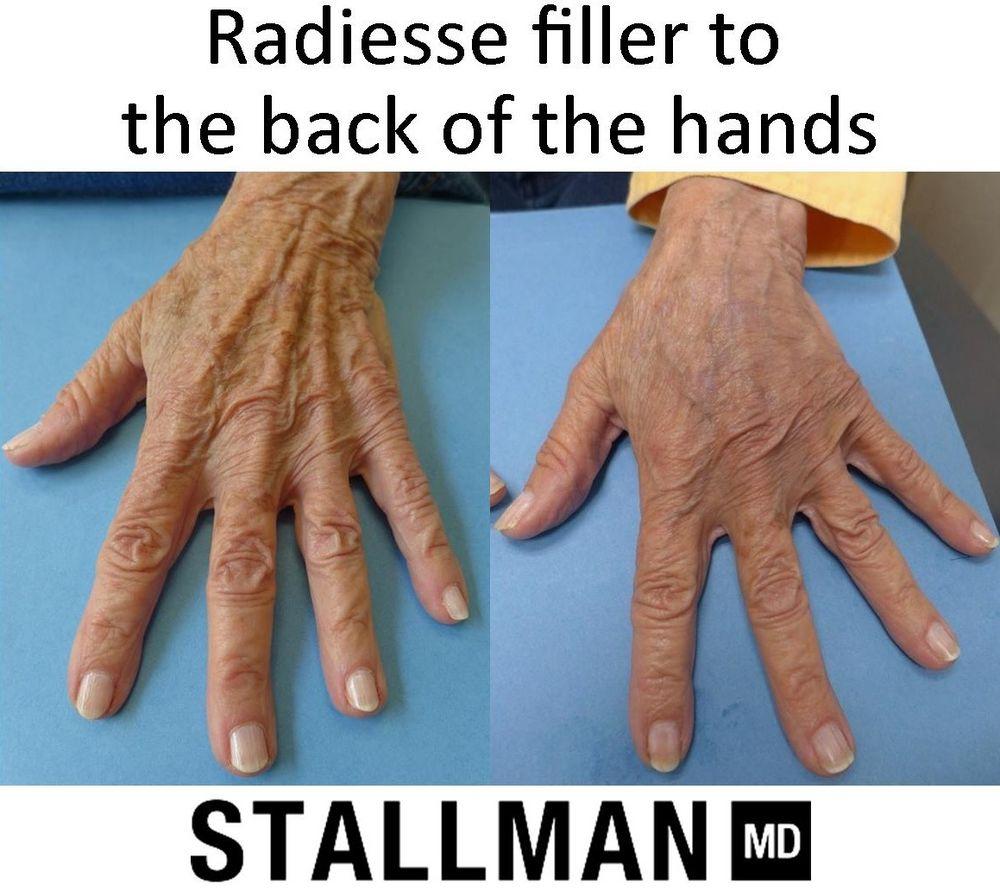 Paul Stallman, MD - Stallman Cosmetic Surgery