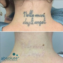 Photos For Absolute Laser Tattoo Removal Yelp