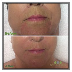 Natural Skin Clinica - Make An Appointment - 16 Photos - Skin Care ...