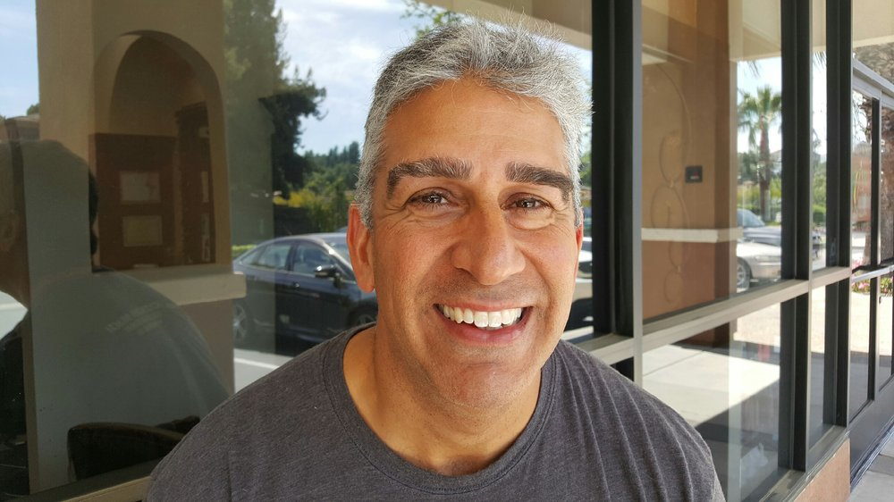 Men With Thick Eyebrows Can Also Be Corrected Yelp