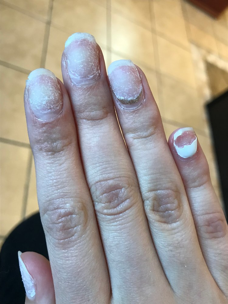 Aftermath of the nail tech ripping off my acrylic nails using a fake ...