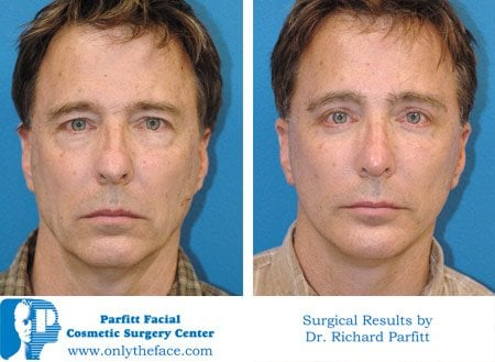 Fat Face -Buccal Fat Removal by Dr  Parfitt - Yelp