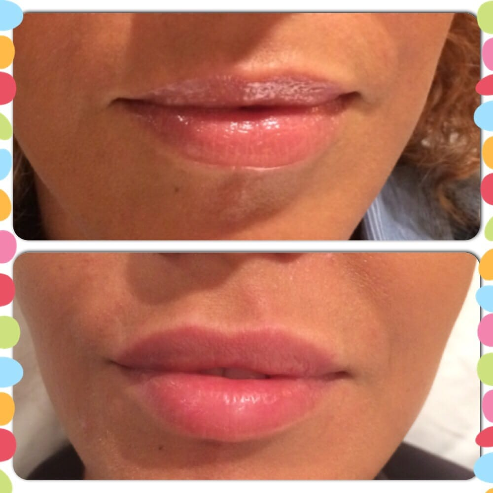 Lips before and after 1 syringe of Juvederm - Yelp