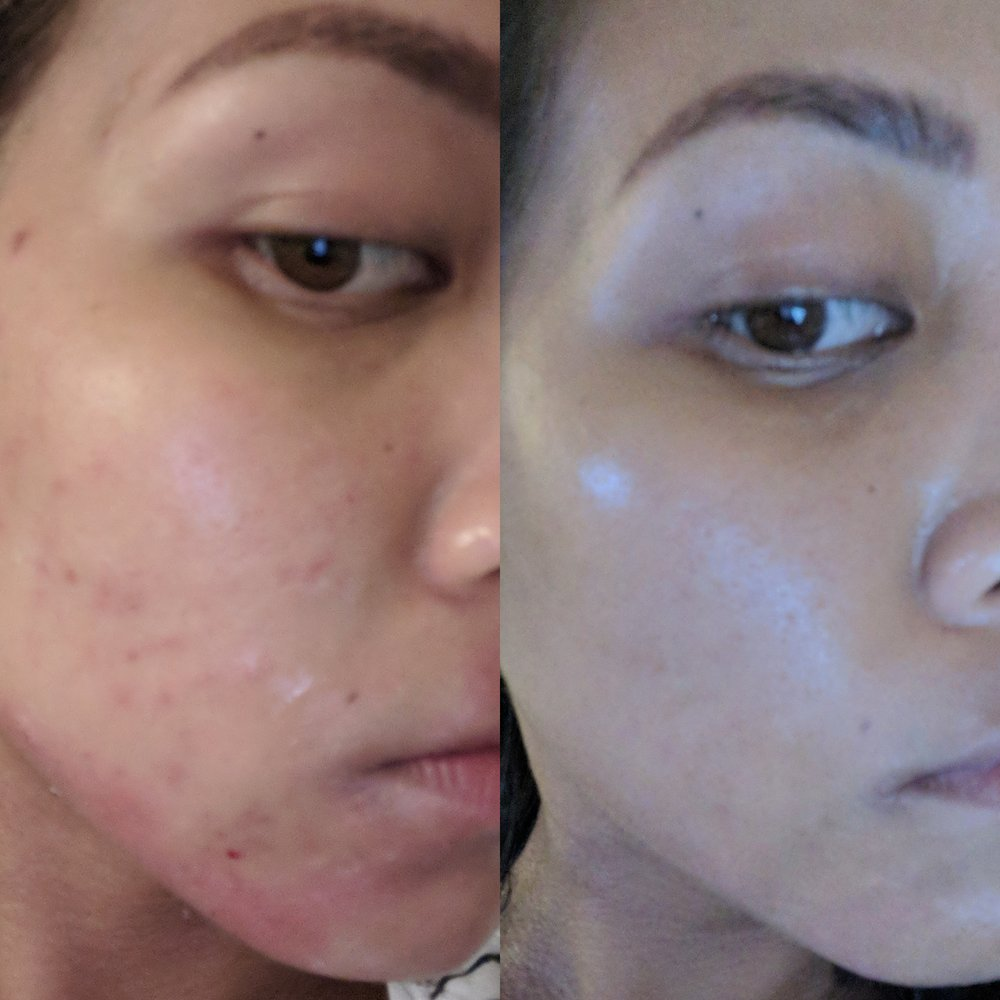Before May 10 (acne, milia, eczema) and After May 31 (clear