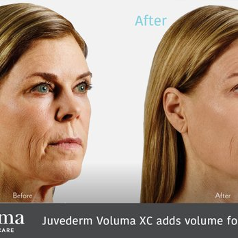 Juvederm Voluma XC adds facial volume for up to 2 years - Yelp