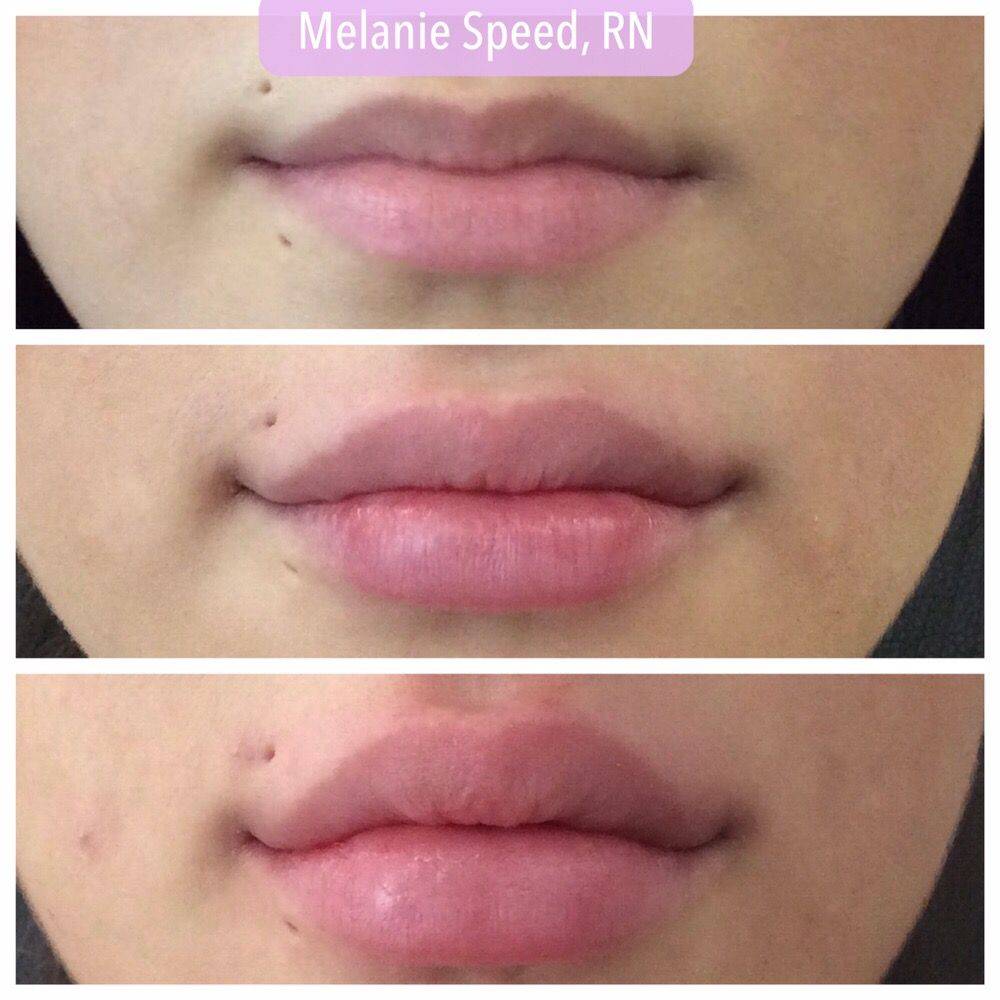 Client after one syringe of Juvederm and then after two syringes  - Yelp