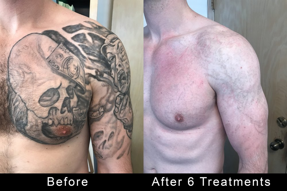 Tattoo Removers.ink: 4849 Van Nuys Blvd, Sherman Oaks, CA
