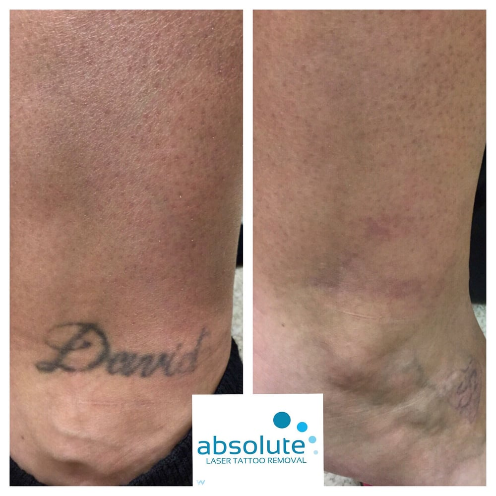Absolute laser tattoo removal 33 photos 39 reviews for Tattoo removal business