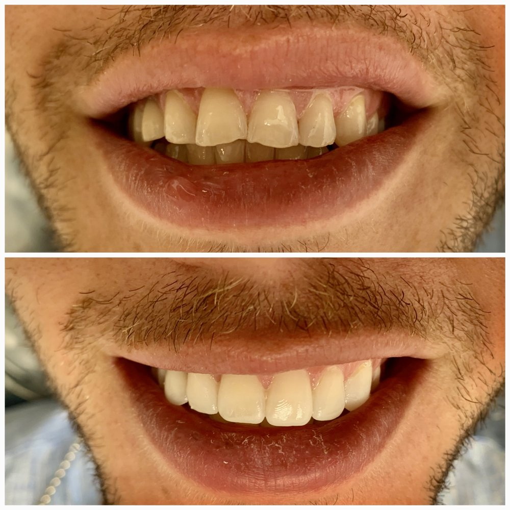 Miracle Smile Dentistry - Plantation: 815 S University Dr, Plantation, FL