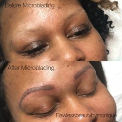 Remarkable phrase facial peels in fayetteville ar with