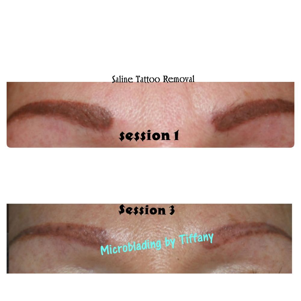 Saline Tattoo Removal: session#3 of removing an old eyebrow tattoo ...