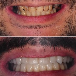 New teeth now reviews