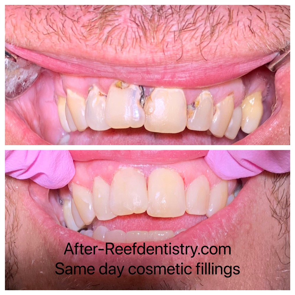 Reef Family & Cosmetic Dentistry: 3015 SW Pine Island Rd, Cape Coral, FL