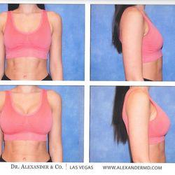 Breast implants worth it