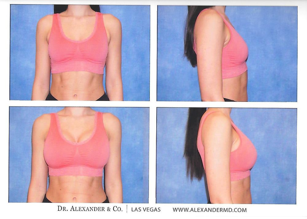Breast augmentation silicone gel