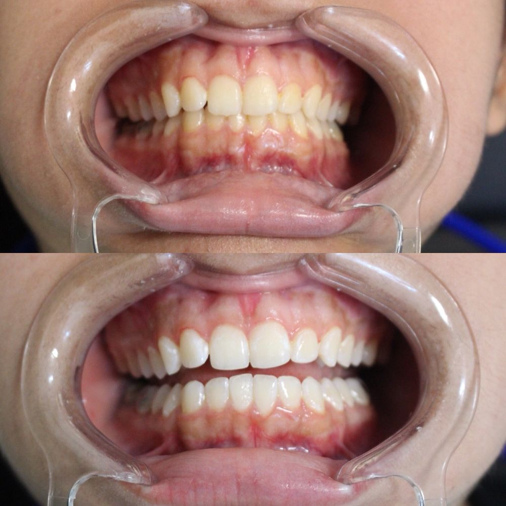 60 Minute Teeth Whitening Session Our System Removes Coffee Stains