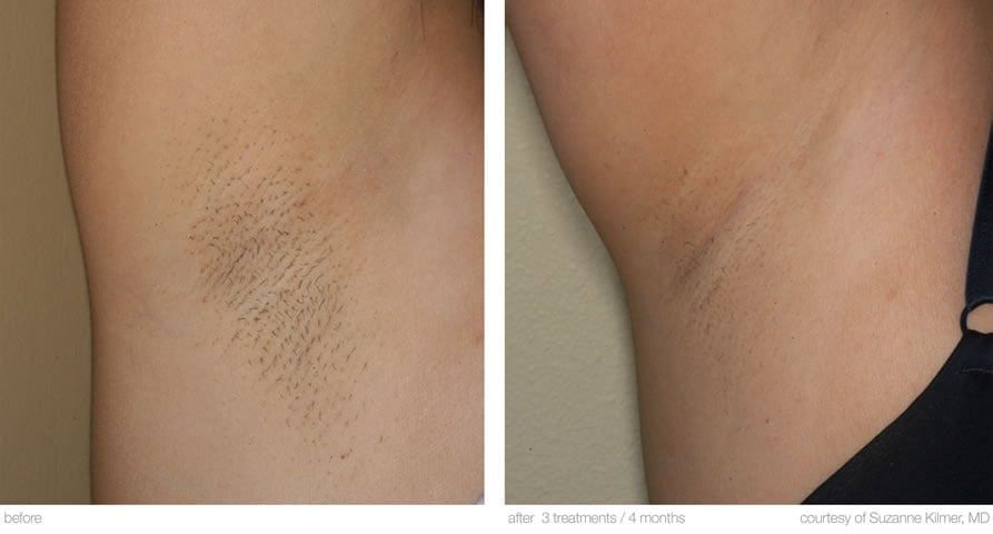 permanent laser hair removal near me