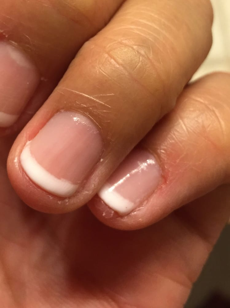 This is my wedding manicure! Cuts above my ring finger, crooked ...