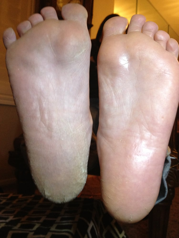 Before and after real person after using the rosie feet for Fish pedicure before and after