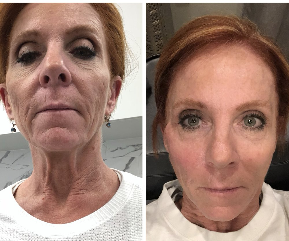 Before/ Immediately After PDO Thread Lift - Yelp